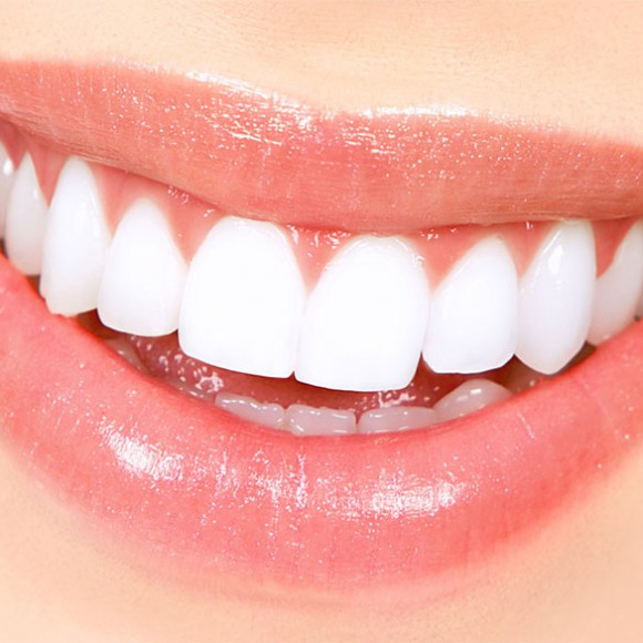 Complete Whitening Package